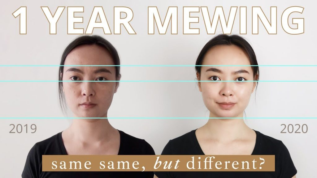 mewing after 1 year