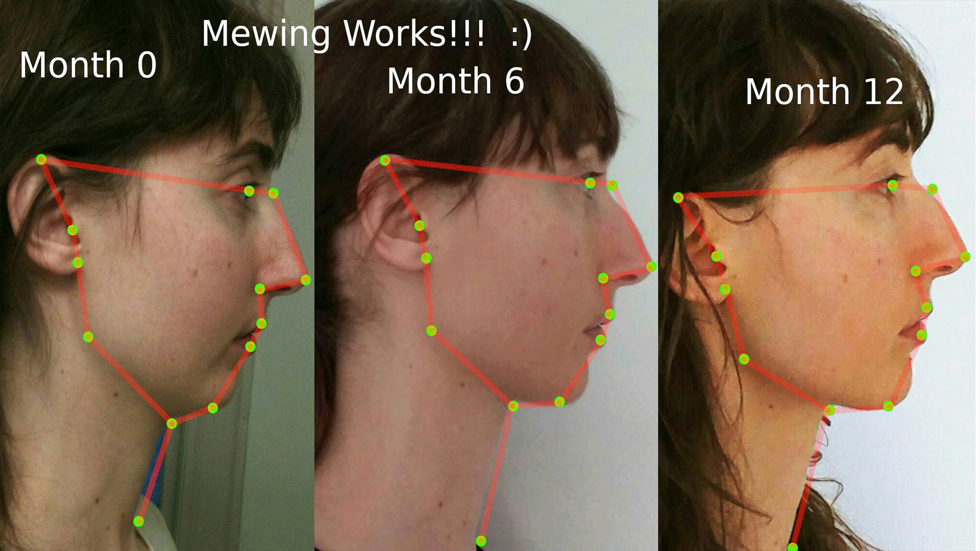 mewing-works
